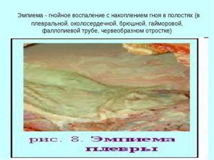 Эмпиема - гнойное воспаление с накоплением гноя в полостях (в плевральной, о