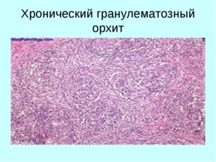 Хронический гранулематозный орхит