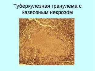 Туберкулезная гранулема с казеозным некрозом