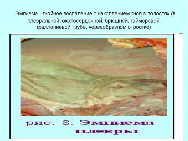 Эмпиема - гнойное воспаление с накоплением гноя в полостях (в плевральной, о...
