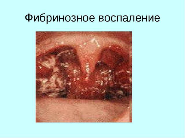 Фибринозное воспаление