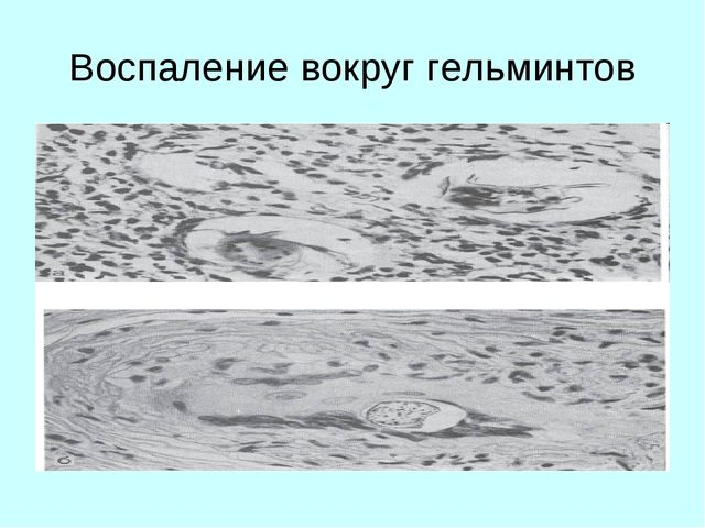 Воспаление вокруг гельминтов