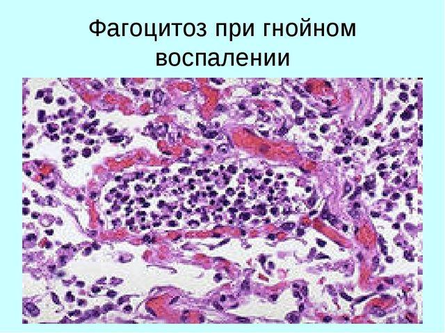 Фагоцитоз при гнойном воспалении