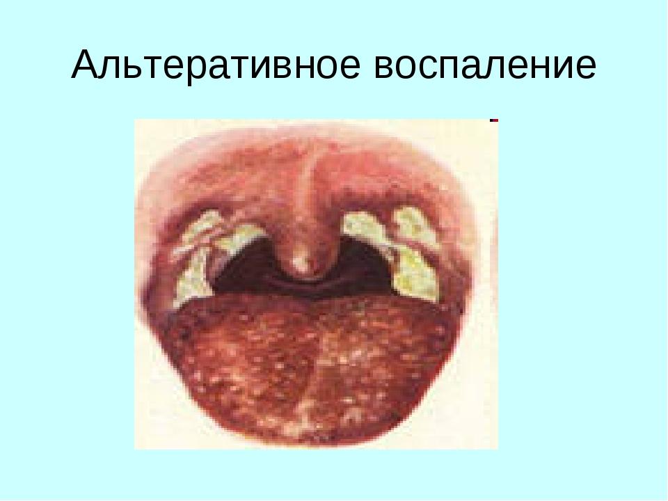 Альтеративное воспаление