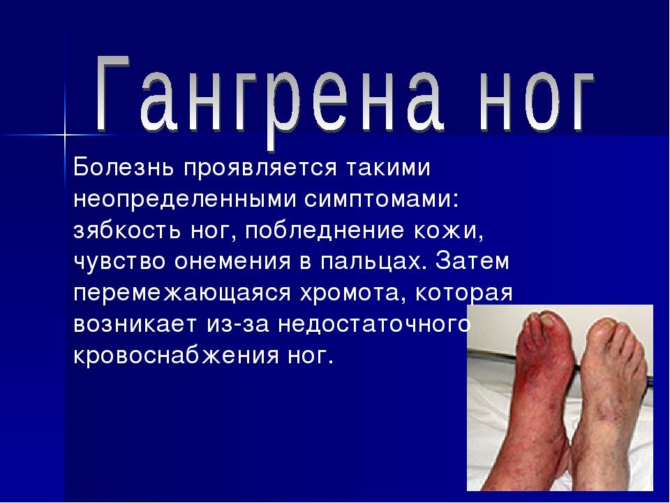 Болезнь проявляется такими неопределенными симптомами: зябкость ног, побледне...