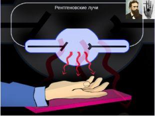 Рентгеновские лучи Излучение рентгеновских лучей, об открытии которых Рентге