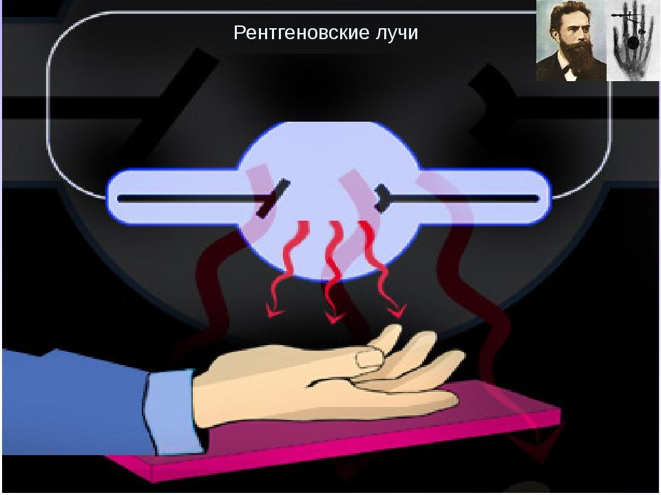 Рентгеновские лучи Излучение рентгеновских лучей, об открытии которых Рентге...