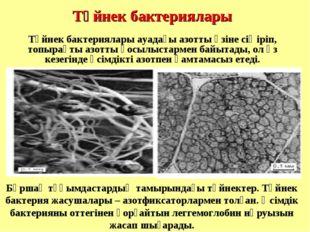 Түйнек бактериялары Бұршақ тұқымдастардың тамырындағы түйнектер. Түйнек бакт