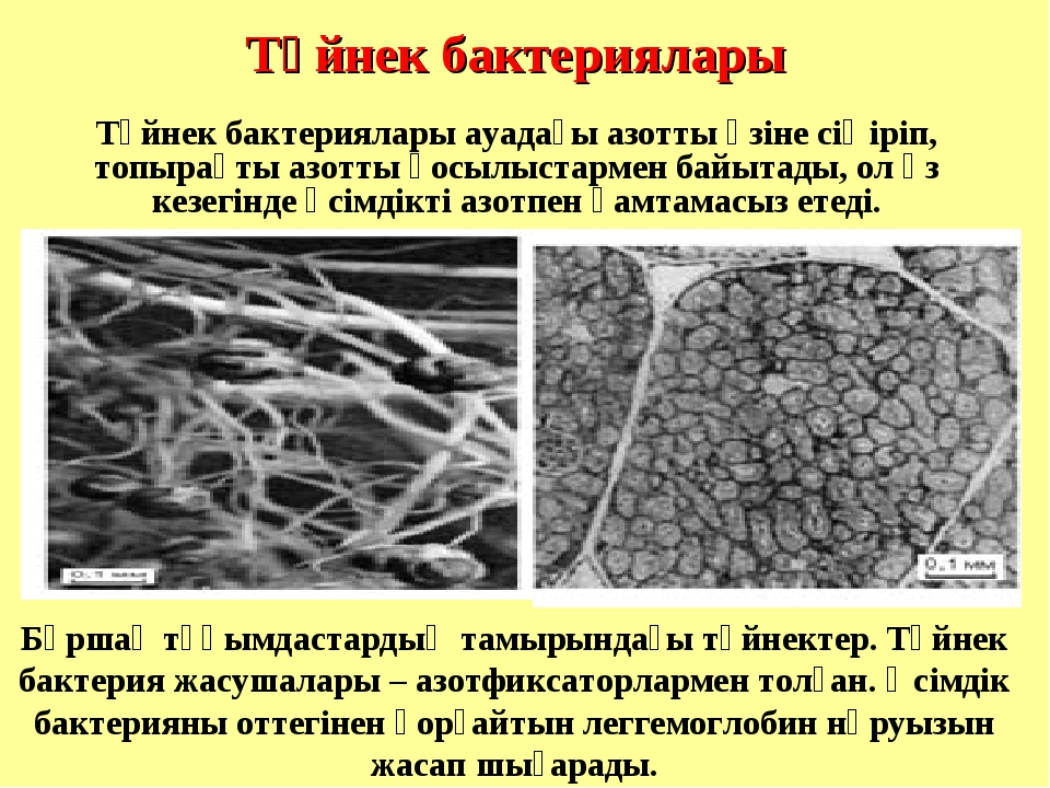 Түйнек бактериялары Бұршақ тұқымдастардың тамырындағы түйнектер. Түйнек бакт...
