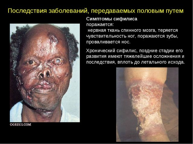Последствия заболеваний, передаваемых половым путем Симптомы сифилиса поражае...