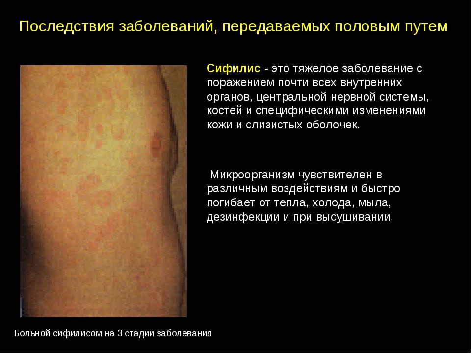 Сифилис - это тяжелое заболевание с поражением почти всех внутренних органов,...