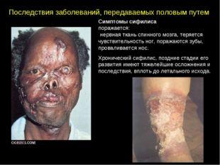 Последствия заболеваний, передаваемых половым путем Симптомы сифилиса поражае