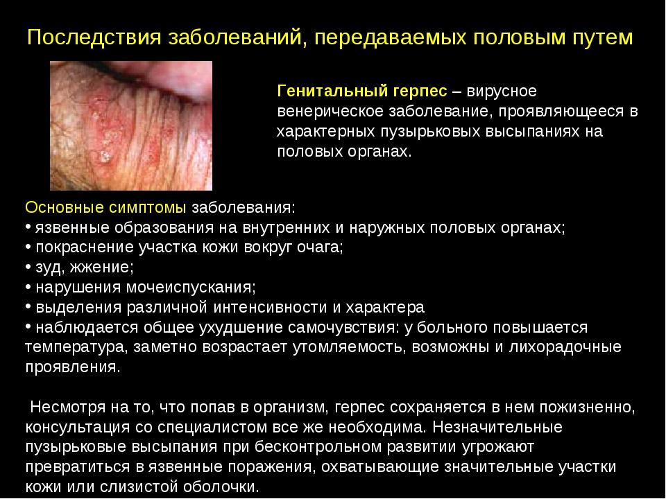 Герпес женские болезни