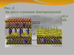 Рис. 2. На фото строение бактериальной стенки грамположительных (справа) и гр
