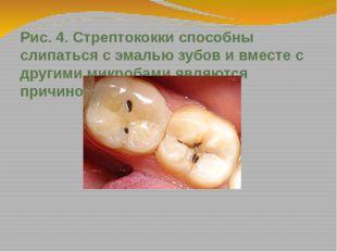 Рис. 4. Стрептококки способны слипаться с эмалью зубов и вместе с другими мик