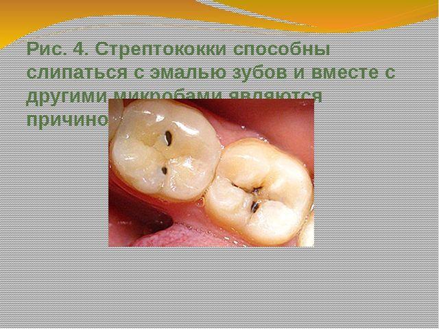 Рис. 4. Стрептококки способны слипаться с эмалью зубов и вместе с другими мик...