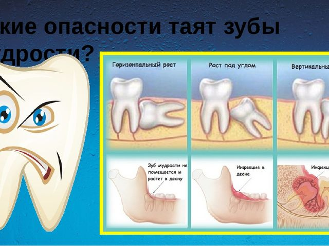 Какие опасности таят зубы мудрости?