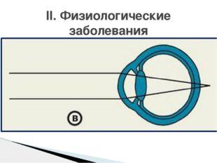 Причина: - продольная ось короткая - слабая преломляющая сила глаза (кривизна