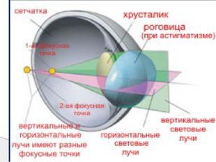 Симптомы: нечеткое зрение, которое не устраняется увеличением оптической силы
