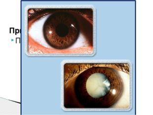 Симптомы: Снижение остроты зрения Исправление: - очки с большими диоптриями -