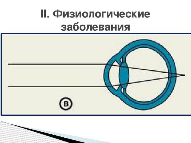Причина: - продольная ось короткая - слабая преломляющая сила глаза (кривизна...