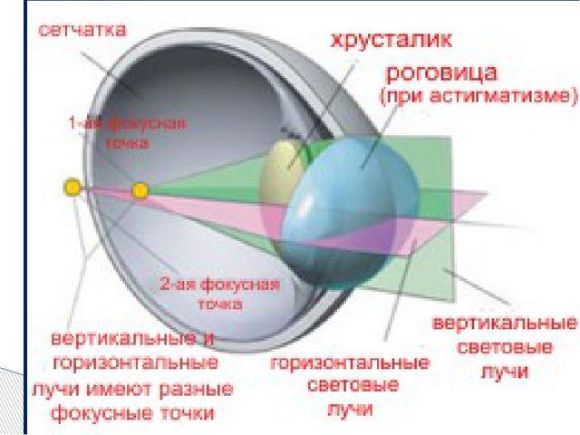 Симптомы: нечеткое зрение, которое не устраняется увеличением оптической силы...