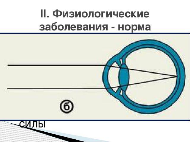 Рефракция глаза- преломляющая сила оптической системы глаза, выраженная в ди...