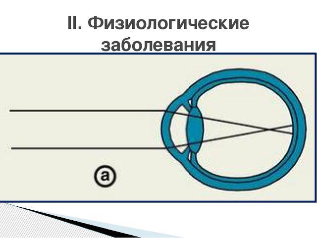 Причина: - длинная ось глаза 22,5 – 23 мм - большая преломляющая сила глаза (...