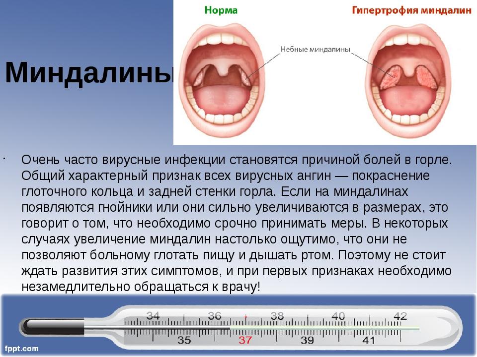 Тонзиллит первые симптомы