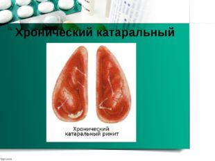 Хронический катаральный ринит