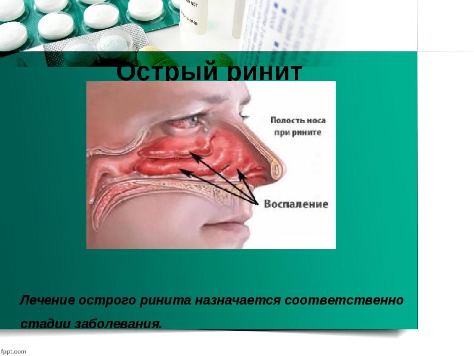 Лечение острого ринита назначается соответственно стадии заболевания. Острый...