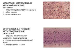 МЕЗОТЕЛИЙ (ОДНОСЛОЙНЫЙ ПЛОСКИЙ ЭПИТЕЛИЙ) вид сверху Импрегнация нитратом