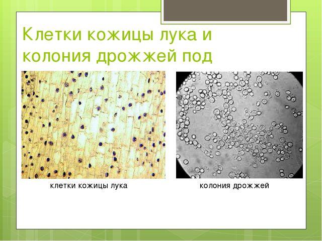 Клетки кожицы лука и колония дрожжей под микроскопом клетки кожицы лука колон...