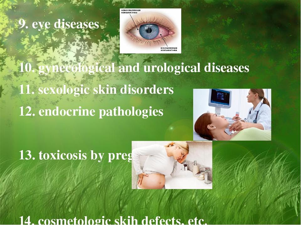 9. eye diseases 10. gynecological and urological diseases 11. sexologic skin...