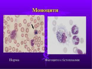 Моноцити Норма Фагоцитоз гістоплазми