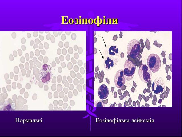 Еозінофіли Нормальні Еозінофільна лейкемія