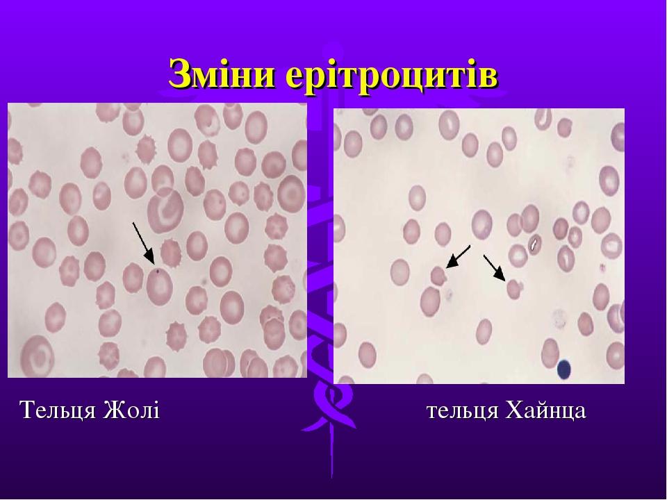 Зміни ерітроцитів Тельця Жолі  тельця Хайнца