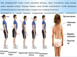 При неправильной осанке голова наклонена вперёд, спина сутуловатая, грудь вп
