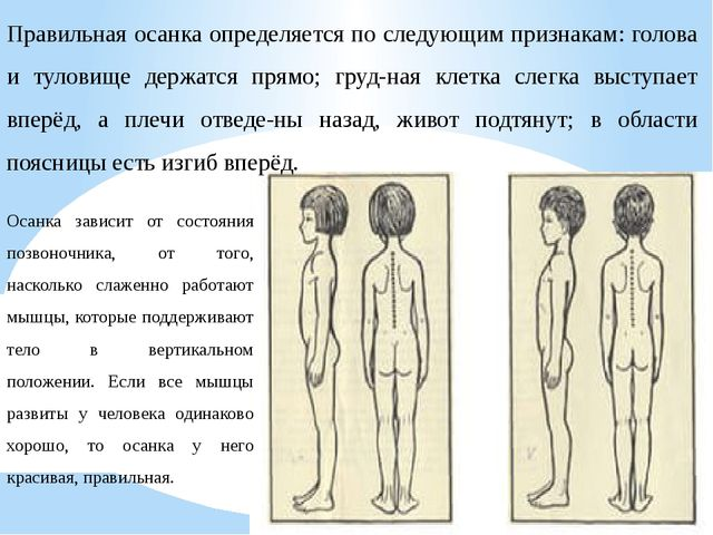 Правильная осанка определяется по следующим признакам: голова и туловище держ...