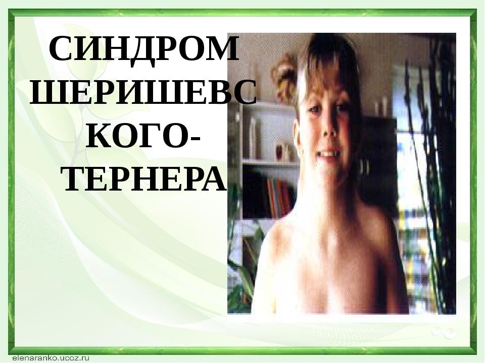 СИНДРОМ ШЕРИШЕВСКОГО- ТЕРНЕРА