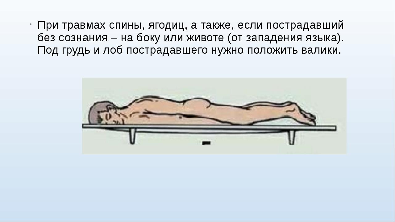 При травмах спины, ягодиц, а также, если пострадавший без сознания – на боку...