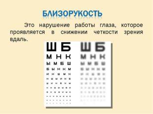 Это нарушение работы глаза, которое проявляется в снижении четкости зрения в