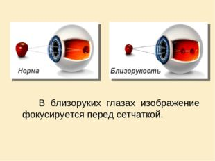 В близоруких глазах изображение фокусируется перед сетчаткой.