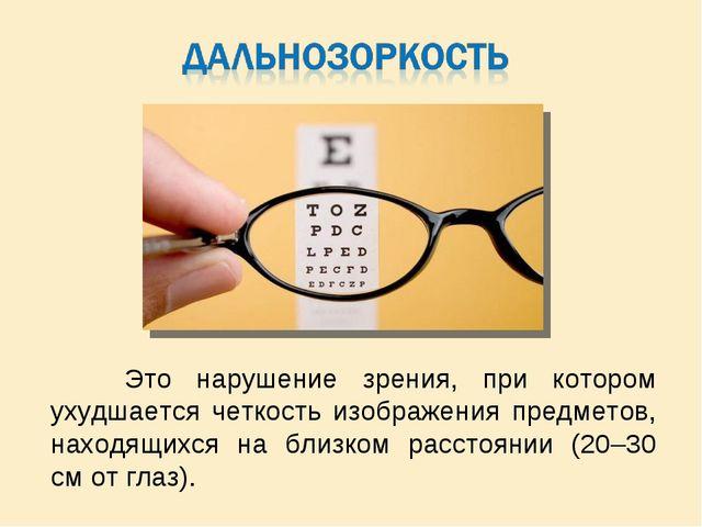 Это нарушение зрения, при котором ухудшается четкость изображения предметов,...