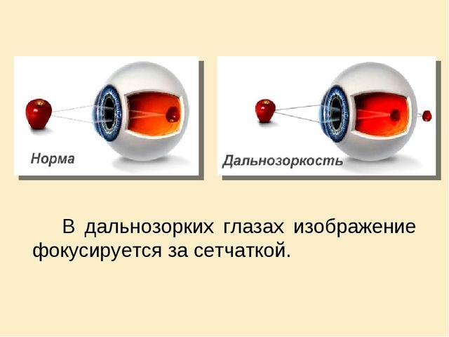 В дальнозорких глазах изображение фокусируется за сетчаткой.