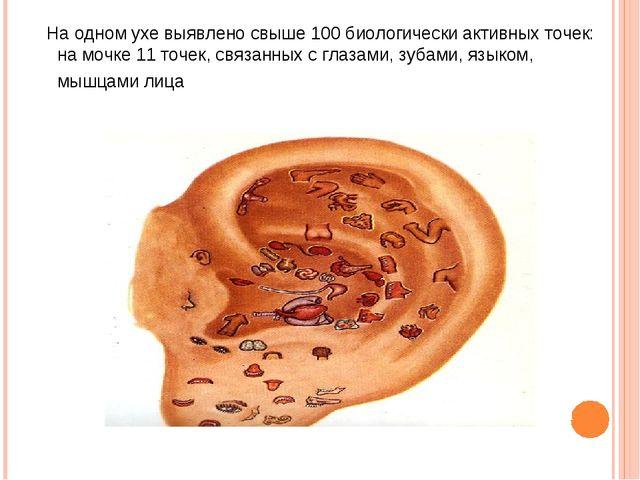 тНа одном ухе выявлено свыше 100 биологически активных точек: на мочке 11 точ...