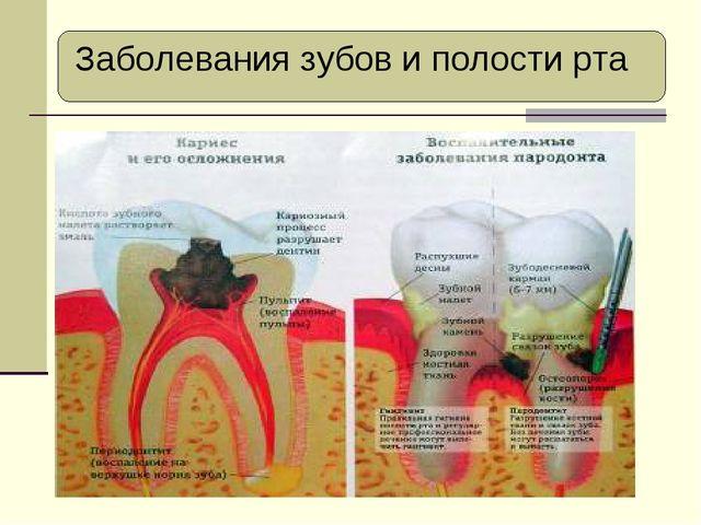 Заболевания зубов и полости рта