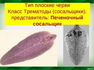 Тип плоские черви Класс Трематоды (сосальщики). представитель: Печеночный сос