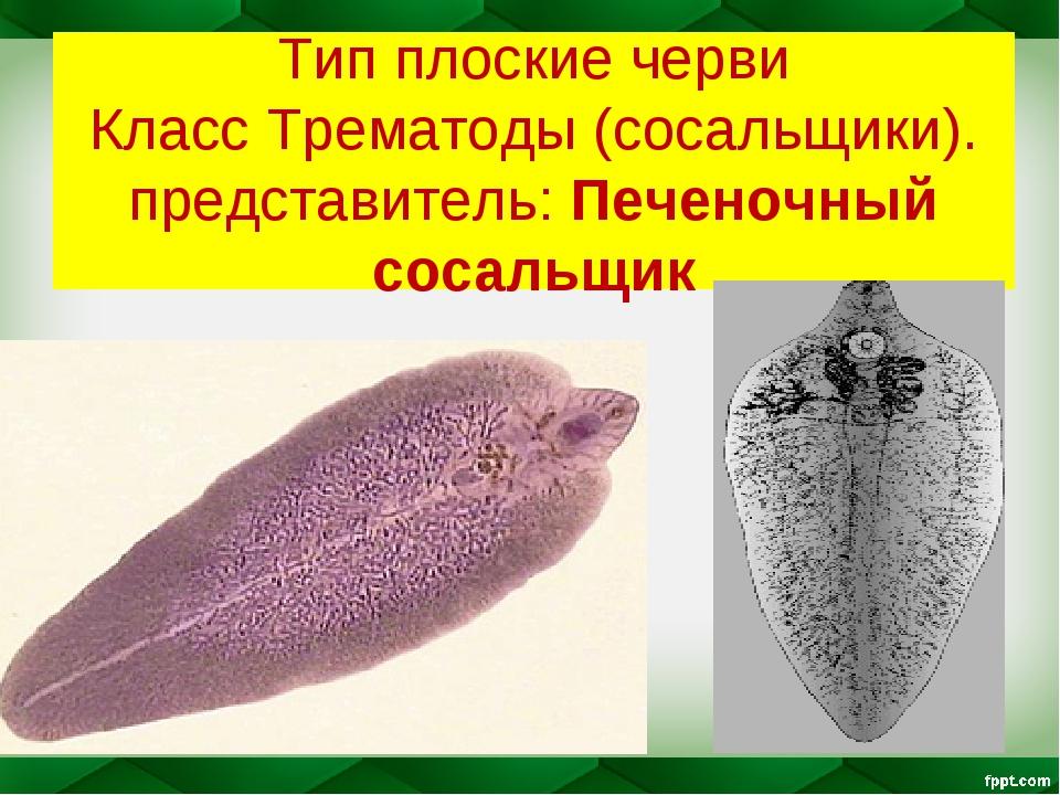 Тип плоские черви Класс Трематоды (сосальщики). представитель: Печеночный сос...