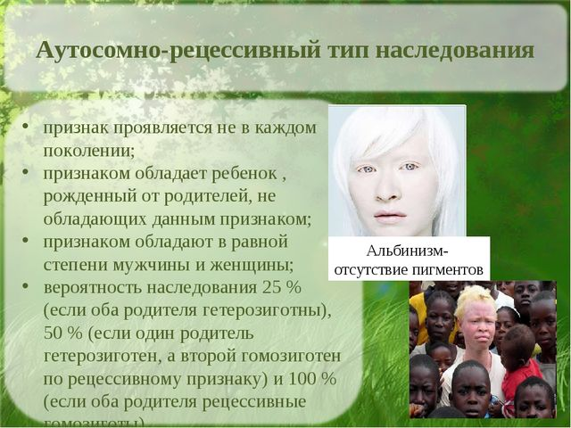 Альбинизм- отсутствие пигментов